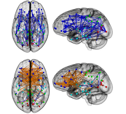 Top: male brain networks Bottom: female brain networks